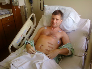 Carrot Missiles puts tree professor in the hospital with minor injuries. Photo by professors wife